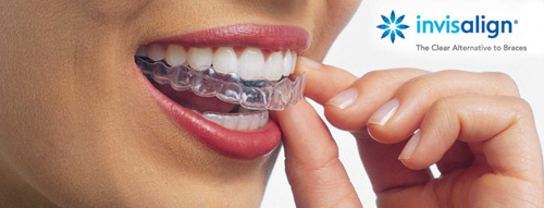 Invisalign Clear Braces Los Angeles