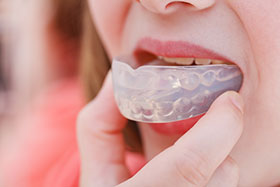 Los Angeles Sleep Apnea Oral Appliance