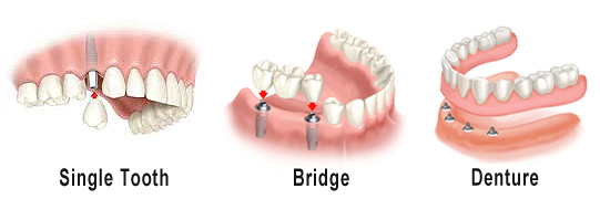 Dental Implants, Dentures, Bridges Los Angeles, CA