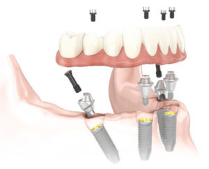 All On 4 Dental Implants Los Angeles